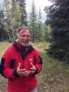 Facial Trauma, Rocky Mountain Adventure Medicine